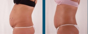 Body Fat Reduction Rockford