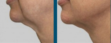 Neck Reduction Rockford
