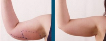 Arm Fat Reduction Rockford