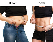 Rapid Weight Loss Rockford