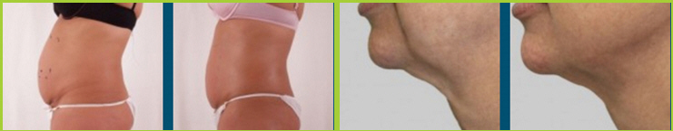Local Cyrotherapy for Cellulite Rockford